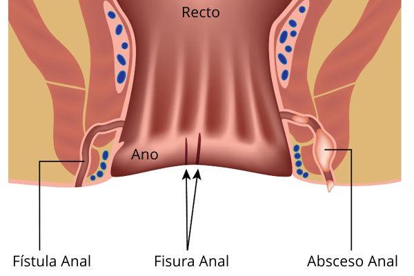 Analna Fisura i lečenje fisure Proktomed proktološka ordinacija za fisure