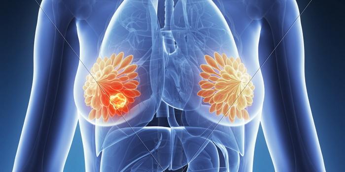 sta je Biopsije dojke - biopsija raka dojke